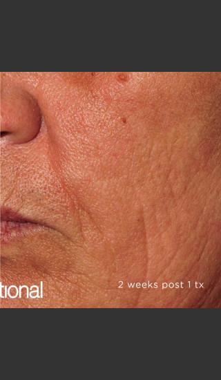 After Photo for Pearl Fractional Resurfacing of Wrinkles -  - Prejuvenation