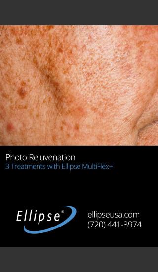 Before Photo for Full Face Rejuvenation after 3 Treatments  -  - Prejuvenation