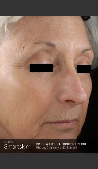 Before Photo for Wrinkle Reduction With SmartSkin Resurfacing -  - Prejuvenation