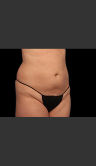 After Photo for Body Contouring Treatment #119 -  - Prejuvenation