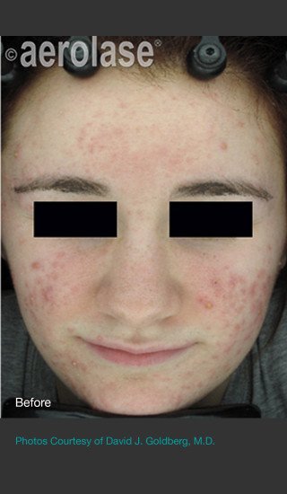 Before Photo for NeoClear by Aerolase Acne Treatment - David J. Goldberg, M.D. - Prejuvenation