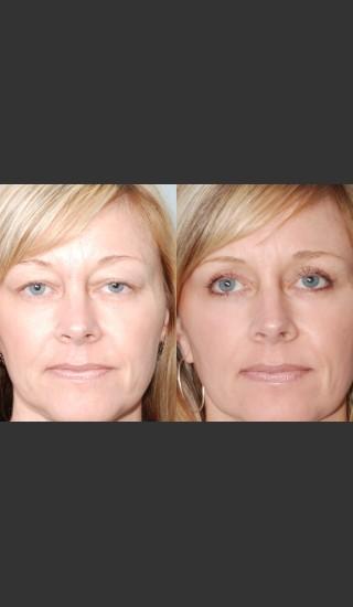 After Photo for Two women with Laser Eyelid Blepharoplasty - Mark B. Taylor, M.D. - Prejuvenation
