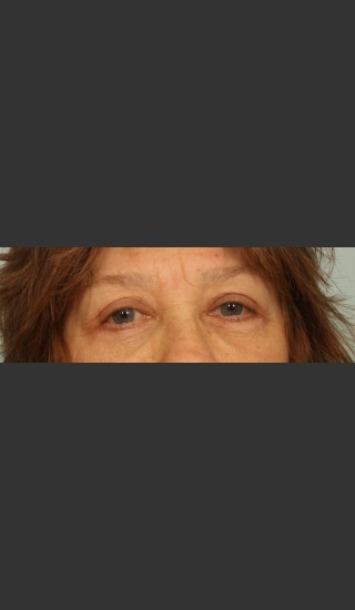 After Photo for Eyelid Surgery - El Paso Cosmetic Surgery - Prejuvenation