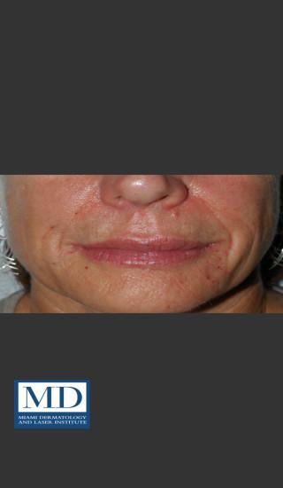 After Photo for Nasolabial Fold and Lip Filler 137 - Jill S. Waibel, MD - Prejuvenation
