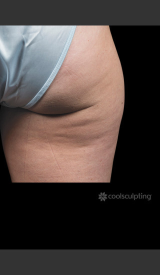 Before Photo for CoolSculpting on Woman's Outer Thigh -  - Prejuvenation