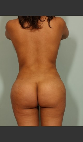 After Photo for Brazilian Butt Lift - El Paso Cosmetic Surgery - Prejuvenation