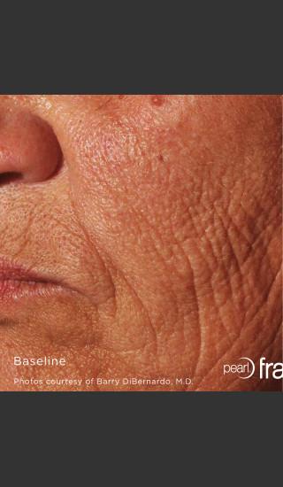 Before Photo for Pearl Fractional Resurfacing of Wrinkles -  - Prejuvenation