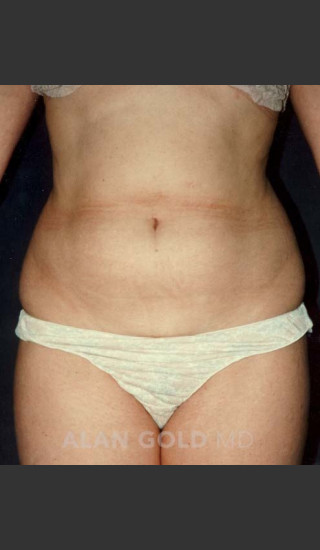 Before Photo for Liposuction 439 - Alan Gold MD - Prejuvenation