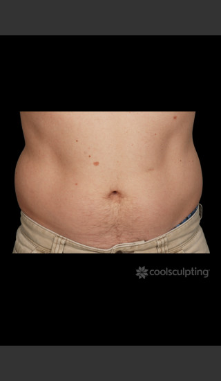 Before Photo for CoolSculpting on Man's Abdomen -  - Prejuvenation