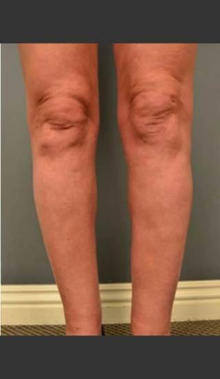 After Photo for Circumferential Liposuction #45 - Dr. David Amron - Prejuvenation