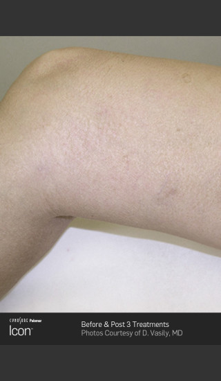 After Photo for Leg Vein Clearance of Upper Thighs Using Icon -  - Prejuvenation