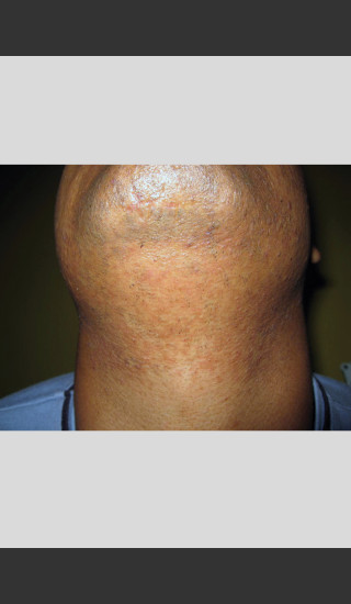 After Photo for Gentle Laser Hair Removal of Beard Bumps -  - Prejuvenation