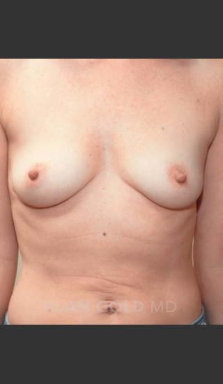 Before Photo for Breast Augmentation 570 - Alan Gold MD - Prejuvenation