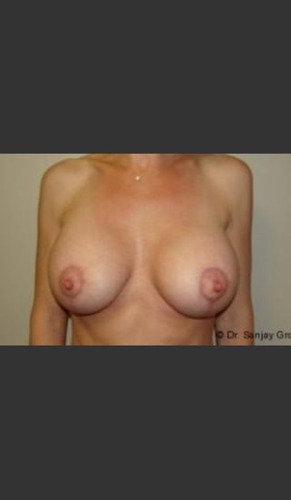 After Photo for Mastopexy 4939 - Sanjay Grover MD FACS - Prejuvenation