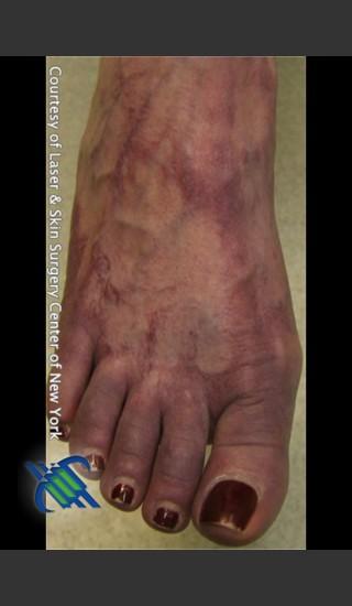 Before Photo for Treatment of Foot Leg Veins - Roy G. Geronemus, M.D. - Prejuvenation