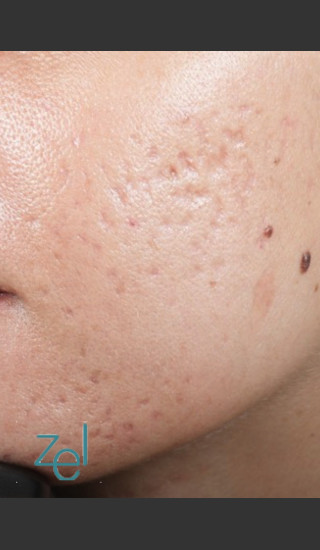 Before Photo for Fractional Resurfacing Acne Scars - Brian D. Zelickson, M.D. - Prejuvenation