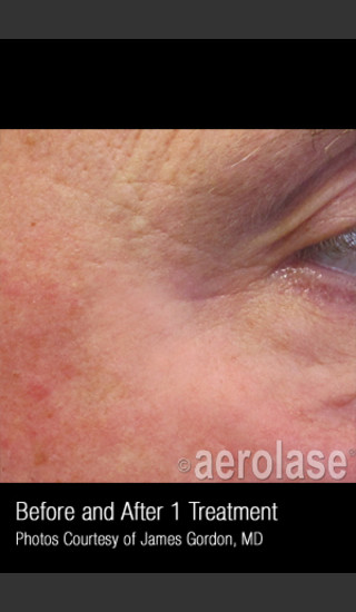 After Photo for Treatment of Crows Feet #339 -  - Prejuvenation