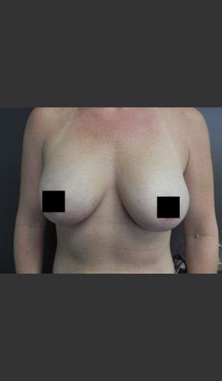 After Photo for Breast Augmentation - Brian P. Tierney, MD - Prejuvenation