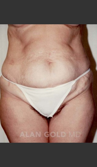 Before Photo for Abdominoplasty 293 - Alan Gold MD - Prejuvenation
