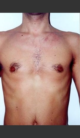 Before Photo for Quanta Light Series Laser Hair Removal #74 -  - Prejuvenation