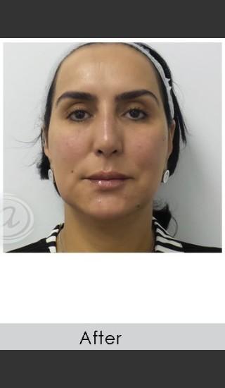 After Photo for Liquid Face Lift - Annie Chiu, MD - Prejuvenation
