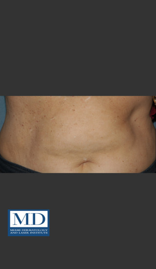 After Photo for Angioma Treatment 106 - Jill S. Waibel, MD - Prejuvenation