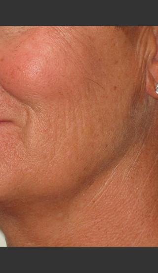 Before Photo for Infini Rhytides Treatment #16 -  - Prejuvenation