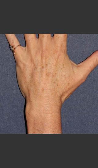 Before Photo for Sun Spot Removal on Hands - Dr. Sabrina G. Fabi - Prejuvenation
