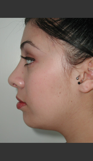 After Photo for Rhinoplasty and Chin Augmentation - James Newman - Prejuvenation