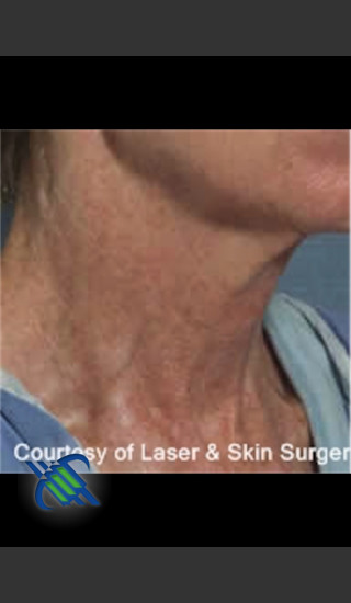 Before Photo for Treatment of Neck Pigmentation - Roy G. Geronemus, M.D. - Prejuvenation