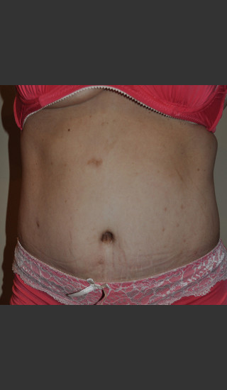 After Photo for Dr. Palmer Tummy Tuck 02 - Shane Palmer - Prejuvenation