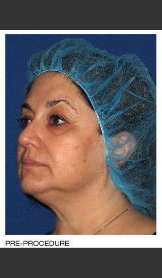 Before Photo for Alastin Skincare Procedure Enhancement System -  - Prejuvenation