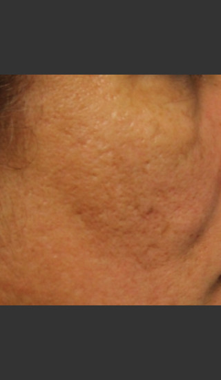 After Photo for Infini Acne Scar Treatment #12 -  - Prejuvenation