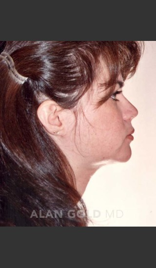After Photo for Liposuction of Neck 96 Side View - Alan Gold MD - Prejuvenation