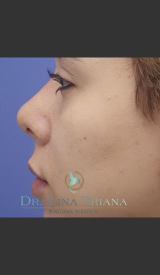 After Photo for Rhinoplasty Female Patient - Lina Triana, MD - Prejuvenation