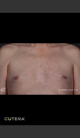 After Photo for Hair Removal of Chest With Excel HR -  - Prejuvenation