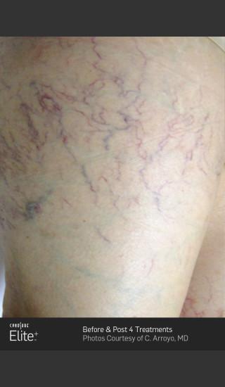 Before Photo for Leg Vein Clearance Using Elite -  - Prejuvenation