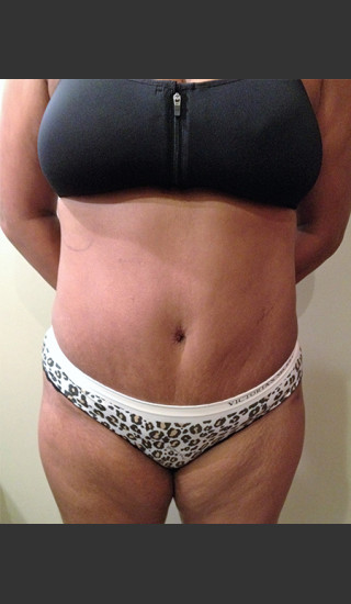 After Photo for Dr. Palmer Tummy Tuck 01  - Shane Palmer - Prejuvenation