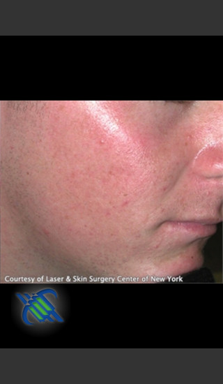 After Photo for Treatment of Facial  Acne Scars - Roy G. Geronemus, M.D. - Prejuvenation
