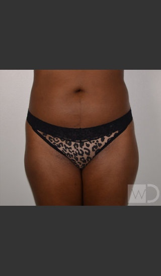 Before Photo for SmartLipo Liposuction of Outer Thighs - Chuma Chike-Obi MD - Prejuvenation