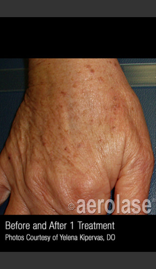 Before Photo for Treatment of Pigmentation #329 -  - Prejuvenation