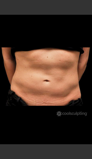 Before Photo for CoolSculpting on Woman's Lower Abdomen -  - Prejuvenation