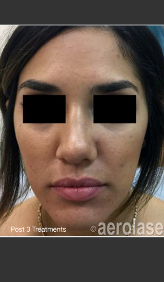 After Photo for NeoClear by Aerolase Acne Treatment -  - Prejuvenation