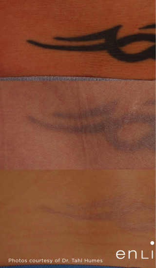 Before Photo for Tattoo Removal on Lower Back -  - Prejuvenation