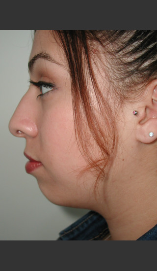 Before Photo for Rhinoplasty and Chin Augmentation - James Newman - Prejuvenation