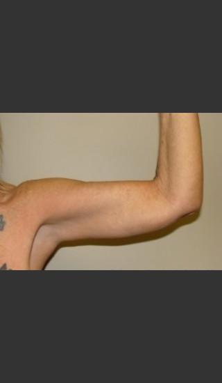 After Photo for Arm Lift 7961 - Sanjay Grover MD FACS - Prejuvenation