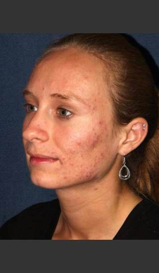 Before Photo for Facial Acne Treatment - Dr. Sabrina G. Fabi - Prejuvenation