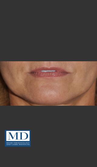 Before Photo for Lip Filler 133 - Jill S. Waibel, MD - Prejuvenation