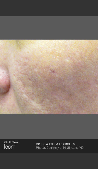 After Photo for Acne Scaring on the Cheeks -  - Prejuvenation