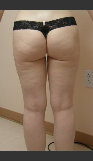 After Photo for Dr. Langdon Liposuction  - Robert Langdon - Prejuvenation